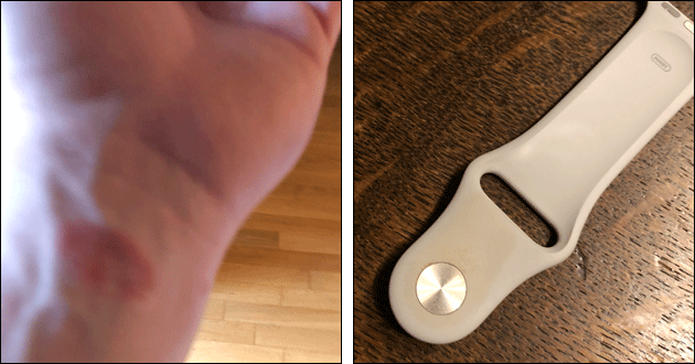 Apple Watch Nickel-Allergie
